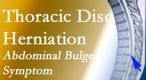 Spengel Chiropractic treats thoracic disc herniation that for some patients prompts abdominal pain.