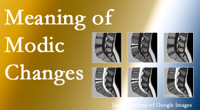 Spengel Chiropractic sees many back pain and neck pain patients who bring their MRIs with them to the office. Modic changes are often seen.