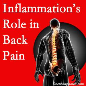The role of inflammation in McHenry back pain is real. Chiropractic care can help.